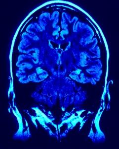 O cérebro sofre diversas alterações após a ingestão do álcool, especialmente em relação aos neurotransmissores. (Créditos: MorgueFile)